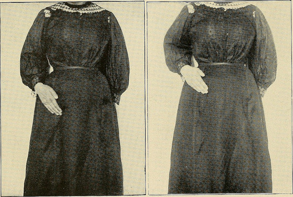 two vintage photos of women holding their midsections